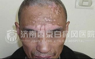徐先生 58岁 头部白斑8年  莱芜人